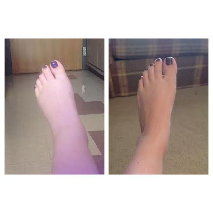 How To Reduce Swelling In Legs And Feet After C Section ...
