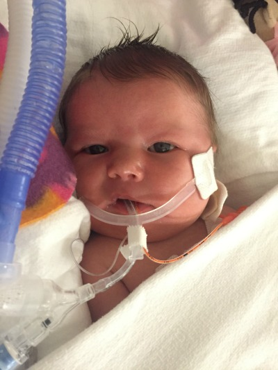 Baby Mercy 7 month update - Stickler Syndrome