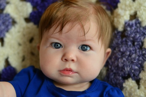7 month update on Baby Mercy - Stickler Syndrome