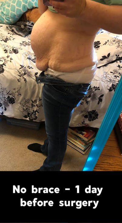 Severe diastasis with no brace on - 1 day before surgery